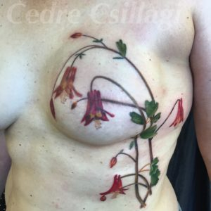 columbine duplication cancer scar coverup tattoo