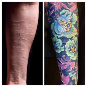 scar coverup william morris color